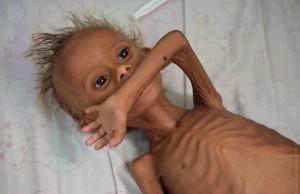 rebenok_golod_yemen_09092016